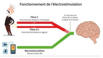 Soulager les douleurs et blessures avec l'électrostimulation